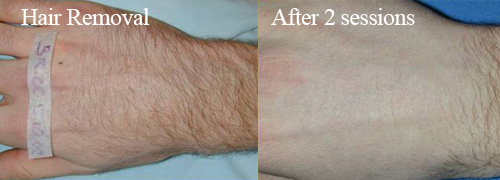 IPL Hair removal from hand
