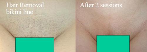 IPL bikini line hair removal
