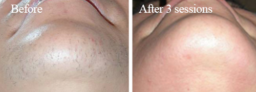 IPL Hair Removal after 3 sessions