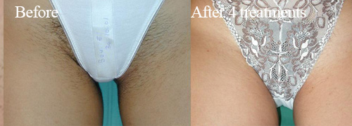 Ipl Results Glow Tanning And Beauty Bedford