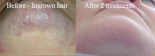 IPL hair removal treatment