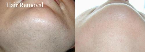 Hair removal using Pulsar IPL