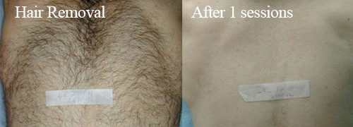 IPL Mens hair removal from chest